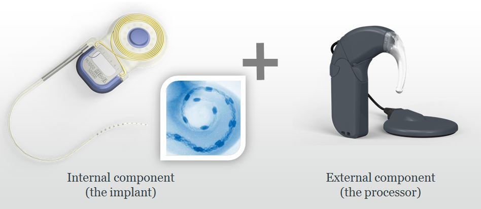 components of a cochlear implant